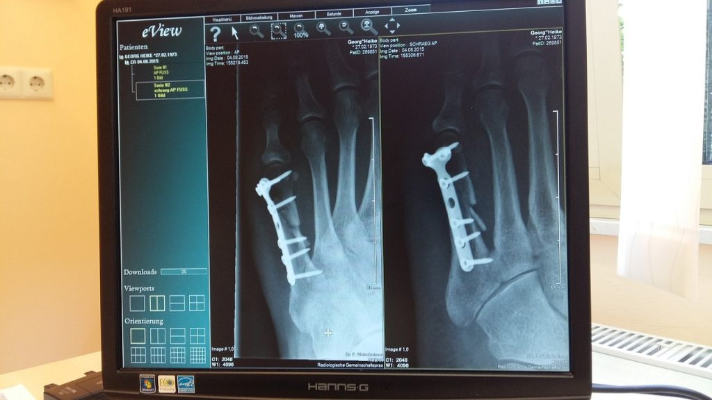 Уральские школьники создали систему, занимающуюся поиском патологий на рентгеновских снимках